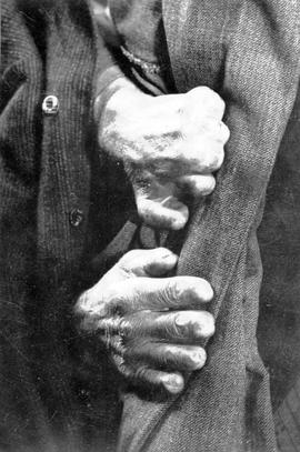 A prospectors frostbitten hands saved by Dr. Henry Esson Young in Atlin.